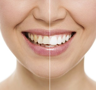 Teeth Whitening Baton Rouge