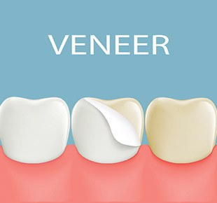 Dental Veneers Baton Rouge