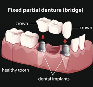 Dentures and Partial Denture Baton Rouge
